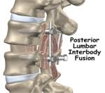 posterior-lumbar-interbody-fusion-surgery1